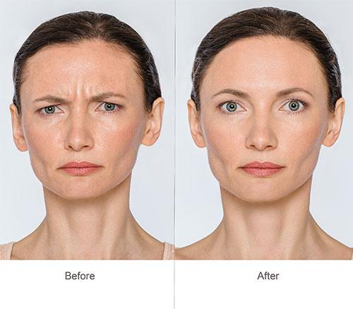 Botox Treatment Clinton Township MI