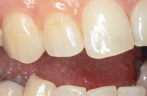 After picture of a tooth with repaired tooth filling