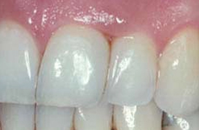 After composite bonding applied to tooth gap