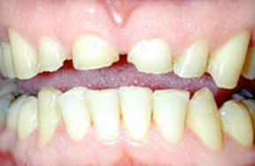 Before picture of a discolored tooth filling