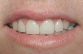 closeup of composite bonding applied to teeth to fix gap