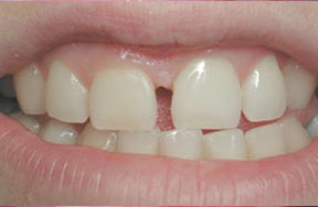 closeup of uneven gum tissue and spaced front teeth